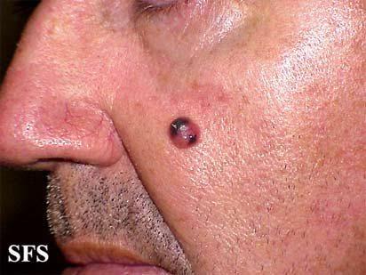 Меланома на лице. Фото: happydoctor.ru